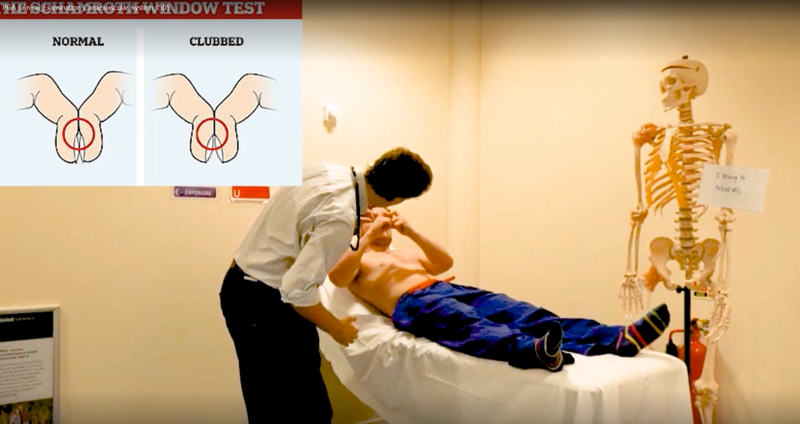 A screenshot taken from a clinical anatomy video illustrating an examination whilst incorporating further information through an inlay